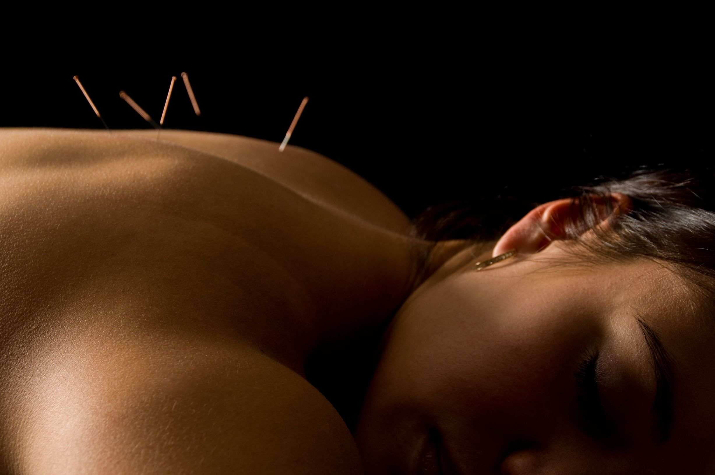 Lana Unger Acupuncture